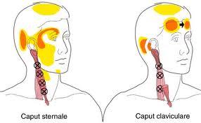 Hovedpine sternocleidomastorideus årsag fysioterapi Physical Movement