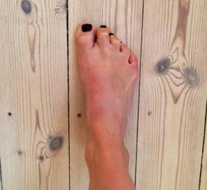 Krøller du (også) tæerne sammen, når du står på et ben? Så er det i gang med isoleret balde aktivering!